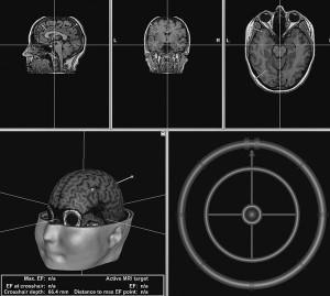Magnetstimulatiooni sihtmärgid ajukoores.