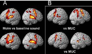 Ajupiirkondade aktiveerumine fMRT uuringul. A – professionaalsed muusikud; B – mittemuusikud; ülemine rida – improviseerimine; alumine rida – noodist mängimine (Harris R, de Jong BM. Brain Res 2015;1624:253–264).